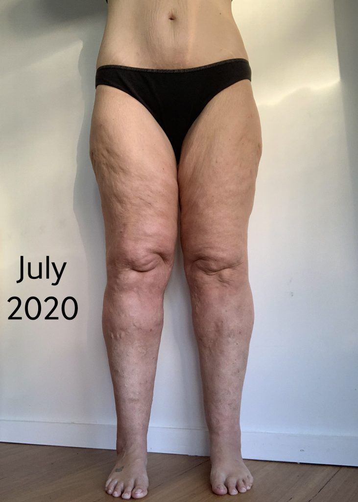 Lipoedema surgery - Pre and Post Conservative care