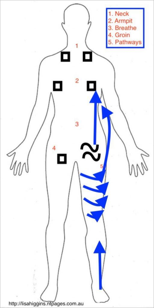 Self maintenance for lymphoedema leg post node removal and radiation