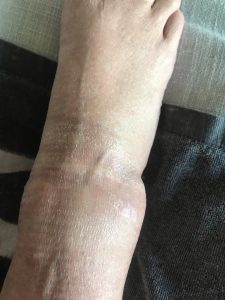 Swelling on a good day