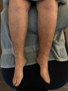 Comparison of legs after MLD and Mobiderm bandaging in clinic